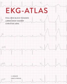 EKG ATLAS